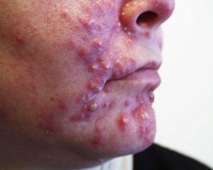 Akne, ett ungdomsproblem som lätt kan behandlas