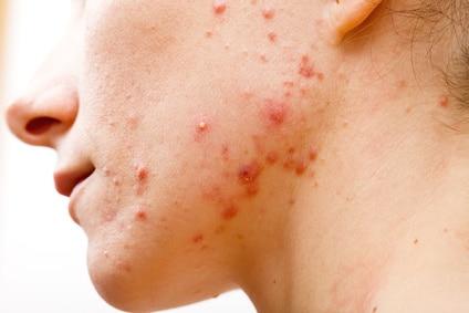 Akne skin